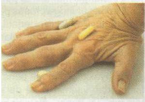 Kelainan Artritis