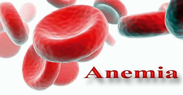 """""""Anemia"""" Pengertian Menurut Para Ahli & ( Kriteria – Tanda – Pencegahan )"""