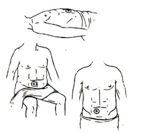 Stoma in lying, sitting and standing position