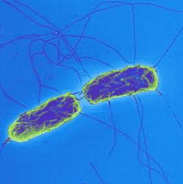 Bakteri Hipertermofil