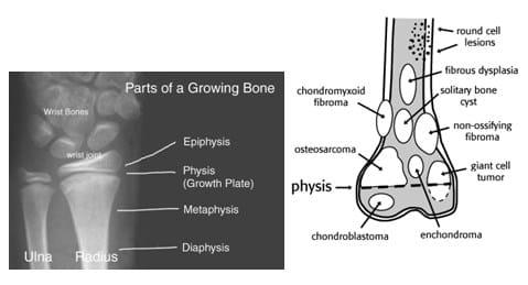 Anatomi-Tulang
