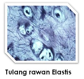 Tulang Rawan Elastis
