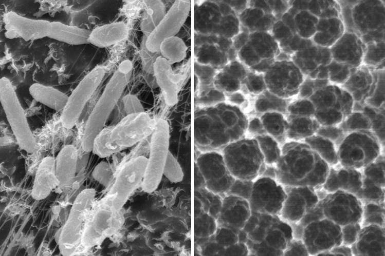 Bakteri-Saproba-(Pengurai)
