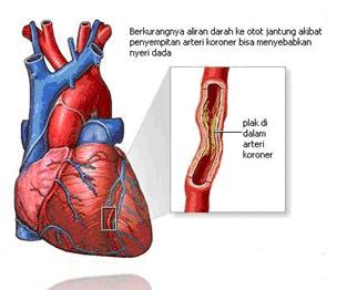 Jaringan-Otot-Jantung