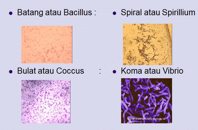 perbedaan eubacteria dan archebacteria