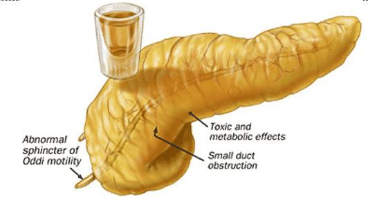Alkohol penyebab pankreatitis